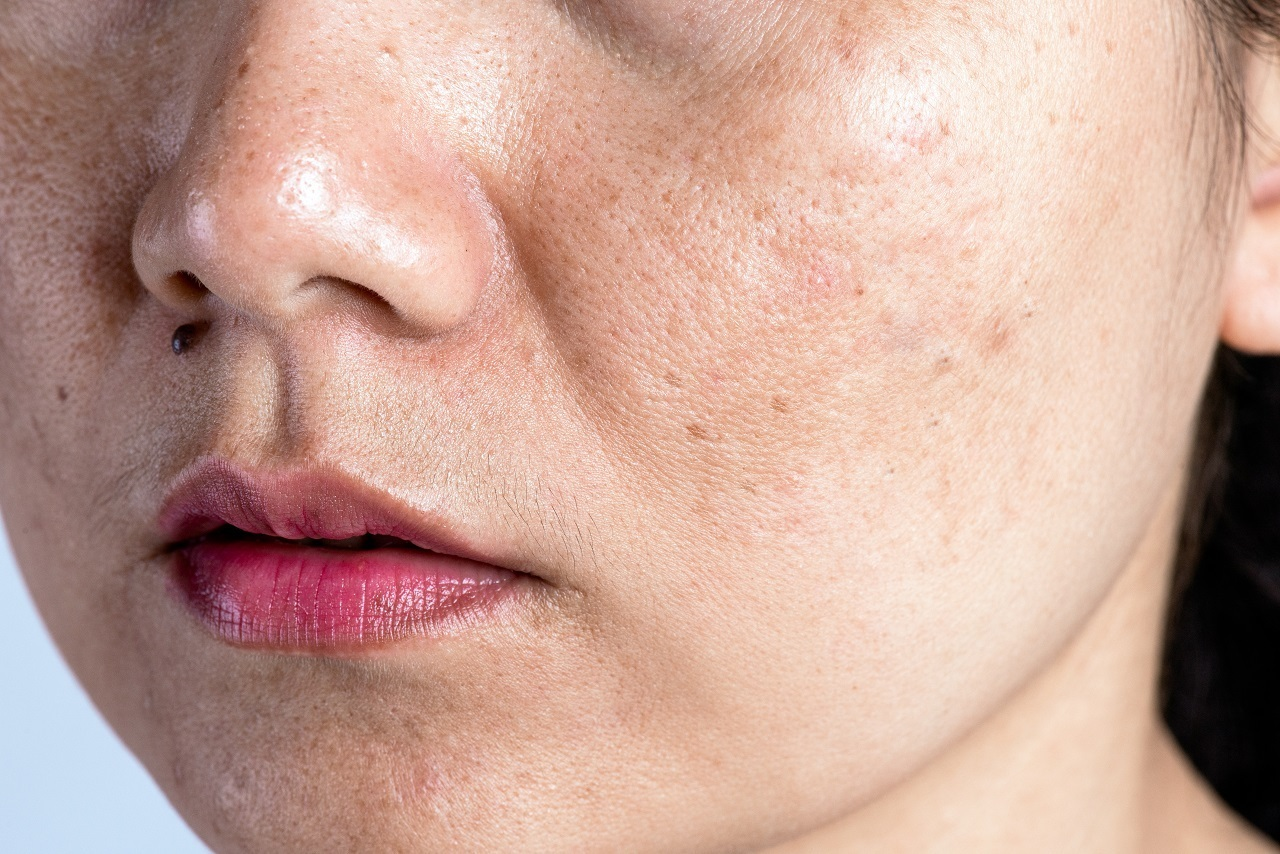 A woman with dark spots